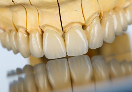 crowns-bridges-waller-dental